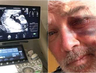 SHOWBITS. Pascal Braeckman wordt opnieuw opa en wat is er met het oog van Stany Crets?