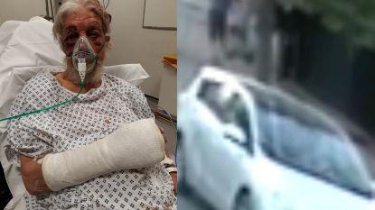 80-jarige slachtoffer van verkeersagressie: gebroken pols, neus en jukbeen