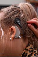 Aan haar linker oor heeft ze al een implantaat dat wel wordt terugbetaald, rechts zou het niet teruggestort worden.