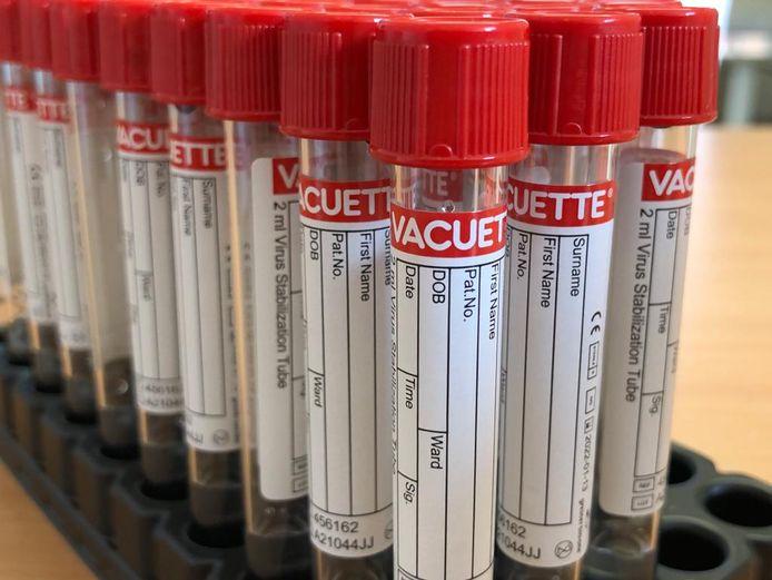 Wie zich laat testen in het ziekenhuis heeft zijn resultaten binnen de vierentwintig uur.
