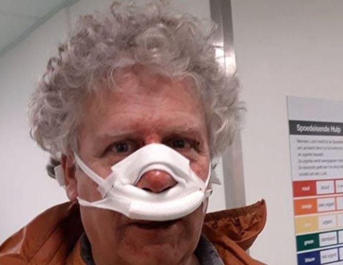 Hans Koster raakte bij zijn val flink gewond aan zijn gezicht.