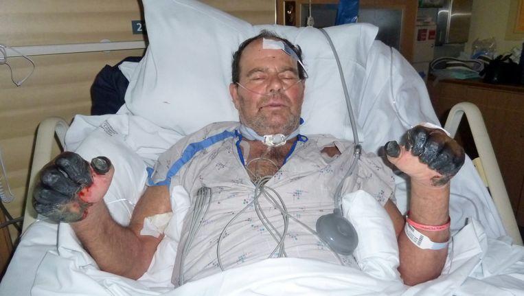 Paul Gaylord uit de Amerikaanse staat Oregon overleefde in 2012 de pest. Hij raakte daarbij wel zijn vingers en tenen kwijt. Beeld AP