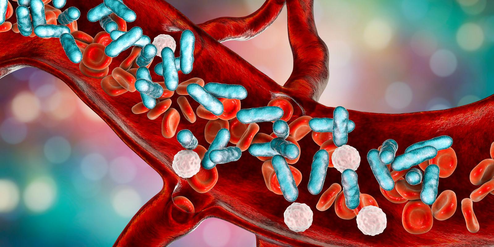 Sepsis ontstaat bij infectie door bacteriën, schimmels en/of virussen in de bloedbaan.