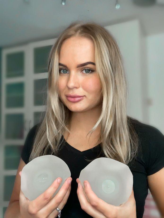 Stacy liet haar implantaten eruit halen nadat ze er ernstig ziek van werd.