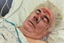 """""""De chauffeur liet me voor dood achter. Hoe laf en harteloos kan je wel zijn"""", vraagt slachtoffer Hendrik van Boegeld (70) zich af."""