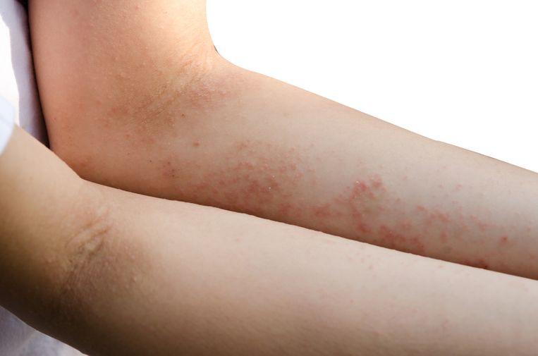 Schurft is een huidaandoening veroorzaakt door de schurftmijt. Een van de symptomen is hevige jeuk die vooral 's nachts opkomt. Beeld Getty Images