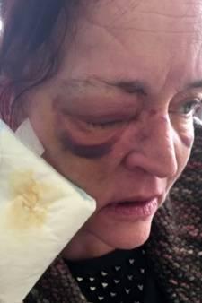 Blind geslagen Jolanda (47) laat kunstoog zien aan dader in tv-programma: 'Dit heb ik door jou!'