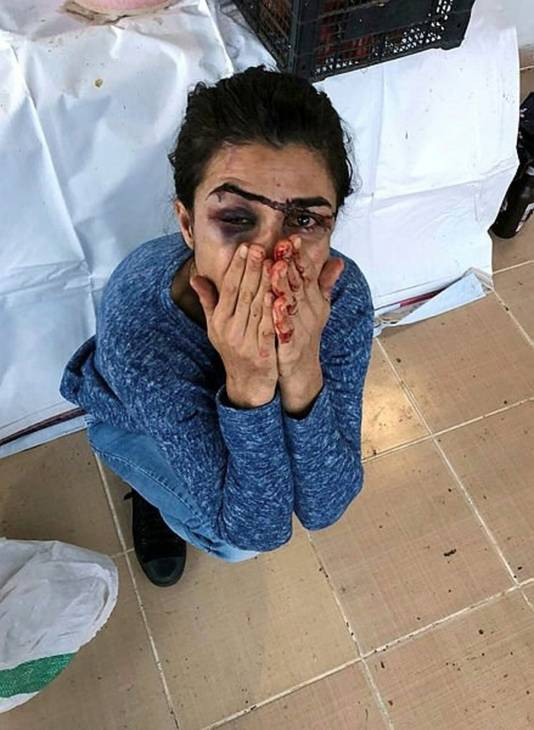 Melek Ipek schoot haar echtgenoot dood die haar zwaar mishandelde en met dood bedreigde.