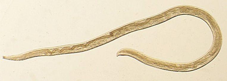 Thelazia gulosa, een type worm dat normaal gezien enkel bij vee voorkomt.