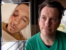 Snoeiharde vuistslag op oog heeft grote gevolgen voor René uit Balkbrug, dader krijgt taakstraf
