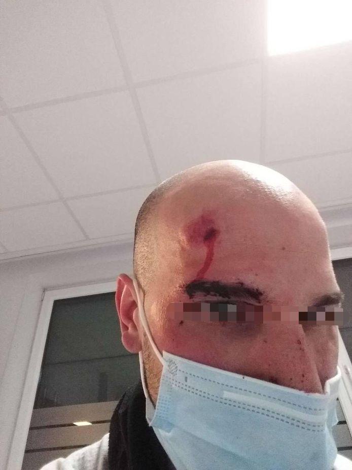Sofiane Hajji uit Vilvoorde werd aangevallen door nep-agenten.