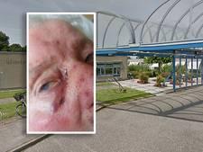 Verpleeghuis weigert ambulance te bellen voor mishandelde Elisabeth (84)