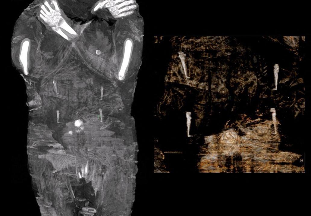 Röntgenbeelden van de zwangere mummie.