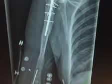 Lijf van Cindy (43) bestaat grotendeels uit protheses, maar als ze geen 50.000 euro inzamelt moeten ze eruit