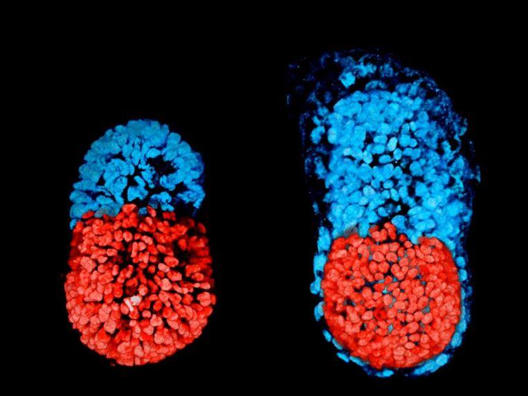 Een kunstmatig gecreëerd embryo. Links is het 96 uur oud, rechts is te zien hoe het zich na 48 uur in een reageerbuis ontwikkeld heeft. Beeld University of Cambridge