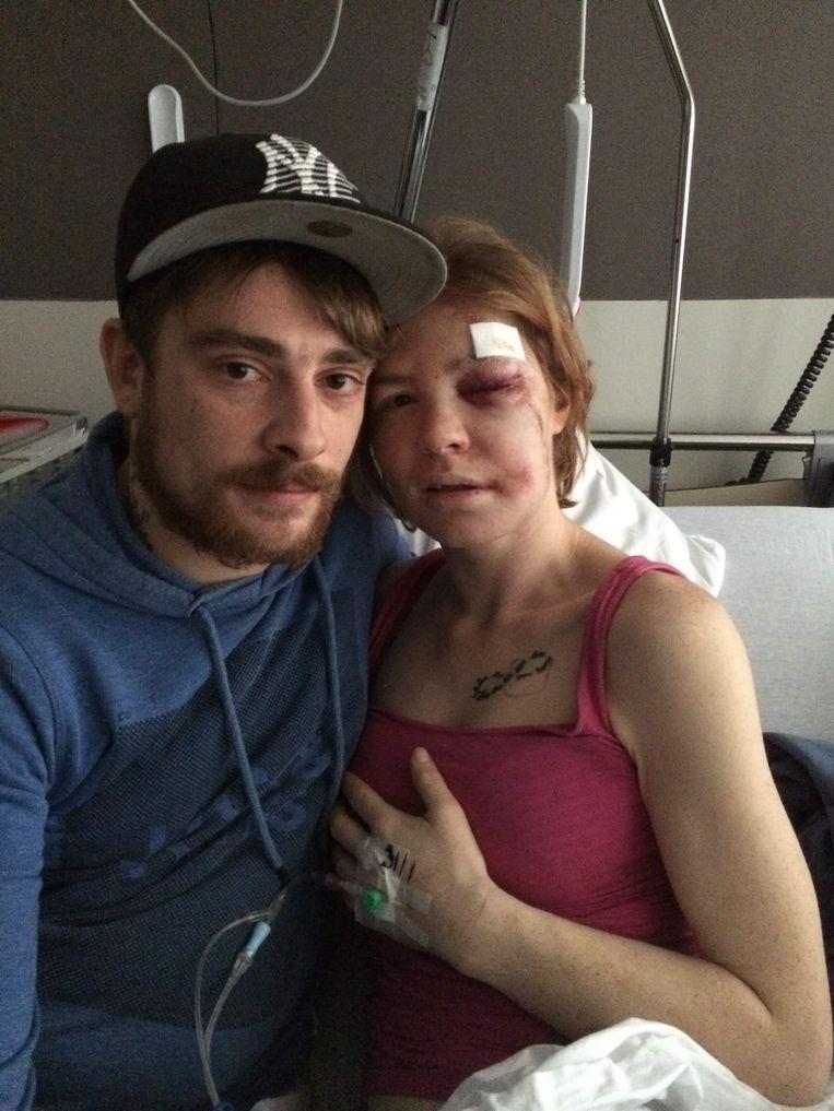 Lindsey raakte flink toegetakeld. Haar vriend Bryan blijft aan haar zijde in het ziekenhuis.