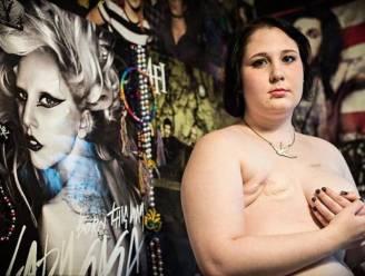 Facebook wist niet langer foto's van borstamputaties
