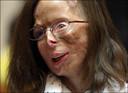 Patricia Lefranc kreeg zwavelzuur in het gezicht gegooid.