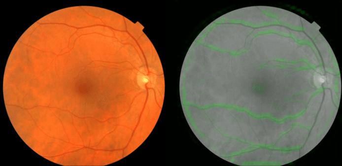 Twee foto's van netvliezen. Links een normaal beeld, rechts zie je hoe Googles algoritme de bloedvaten (in het groen) eruit haalt om de bloeddruk te bepalen.