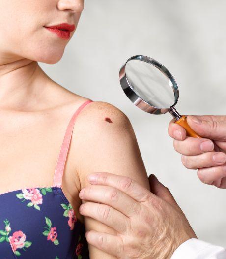 Zo gaat Google helpen om huidkanker te identificeren