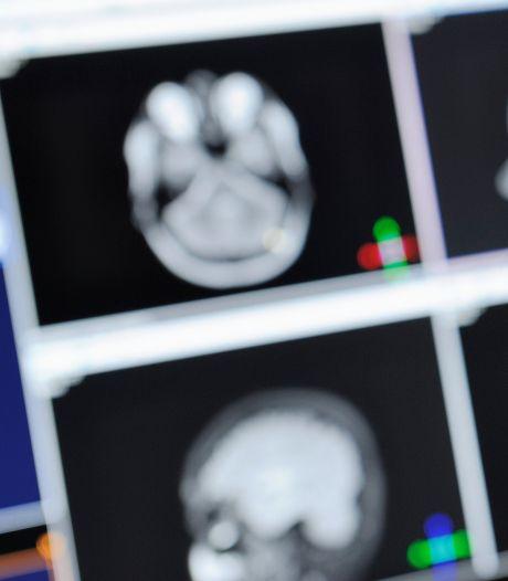 Verhoogde kans op ziekte van Parkinson door levenslang gebruik melkproducten