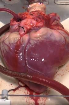 Zelfs artsen verbazen zich over machine die hart overleden donor buiten lichaam laat kloppen: 'Verbazingwekkend'