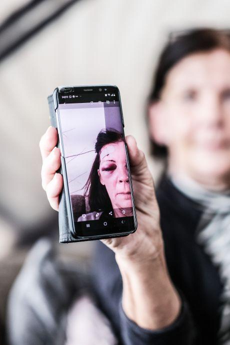Lompe reacties van reaguurders doen Elke meer pijn dan trap van paard tegen haar hoofd: 'Voelt zó onrechtvaardig'