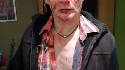 """""""Dealende jongeren"""" slaan man in elkaar nadat hij foto van hen maakt"""