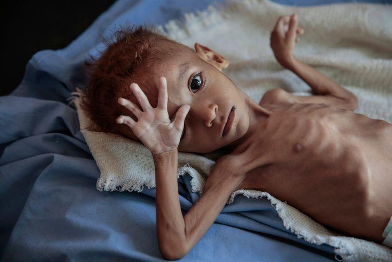 Volgens de VN dreigen 12 tot 13 miljoen mensen te verhongeren in Jemen - een land met ongeveer 28 miljoen inwoners. Naar schatting 1,8 miljoen kinderen lijden honger.