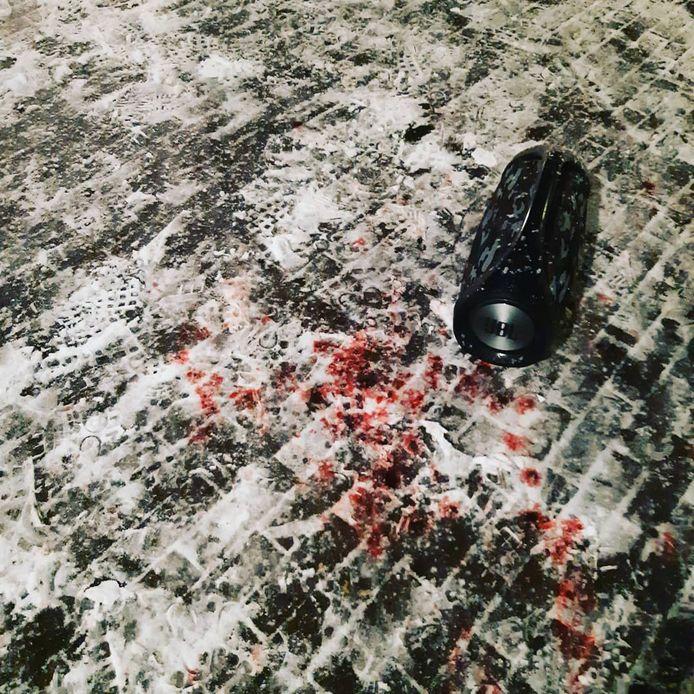 Het 17-jarige slachtoffer van de mishandeling werd onder het bloed aangetroffen.