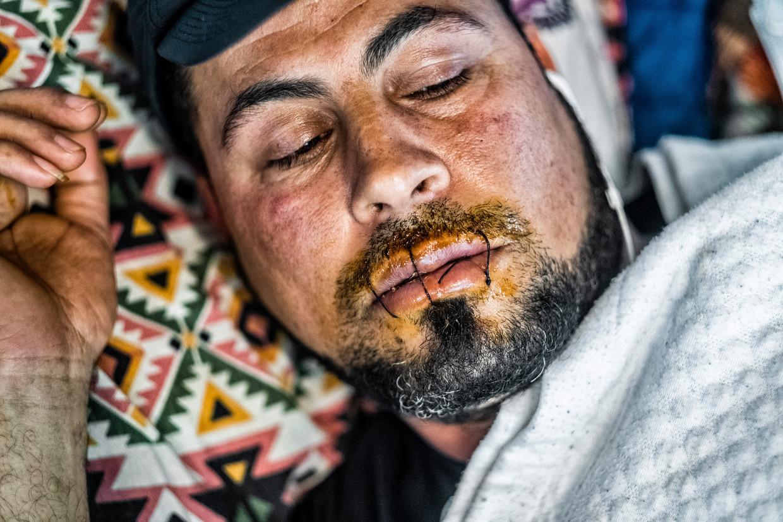 Een aantal hongerstakers heeft de eigen mond dichtgenaaid om niet meer te kunnen eten  Beeld Tim Dirven