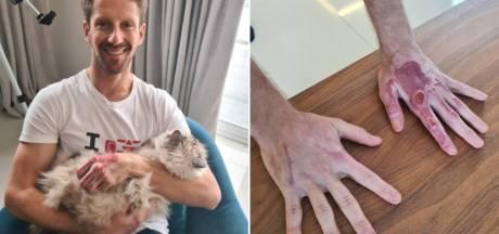 Romain Grosjean dévoile de nouvelles images de ses brûlures aux mains