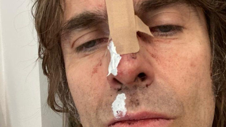 Liam Gallagher Beeld Liam