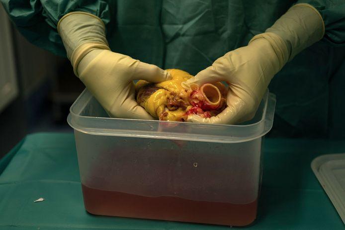 Een donorhart wordt voorbereid voor transplantatie.