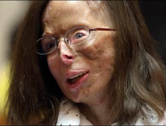 Man die Patricia toetakelde met zwavelzuur nu ook verdacht van kindermoord