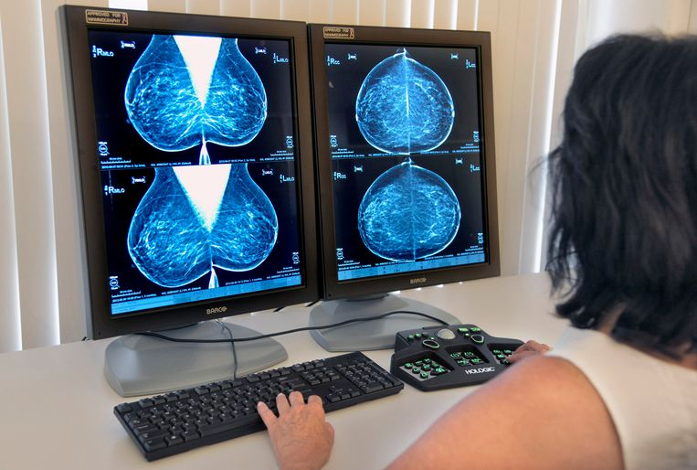 Een dokter bekijkt een röntgenfoto op afwijkingen voor een borstkankeronderzoek. Beeld Hollandse Hoogte / Flip Franssen