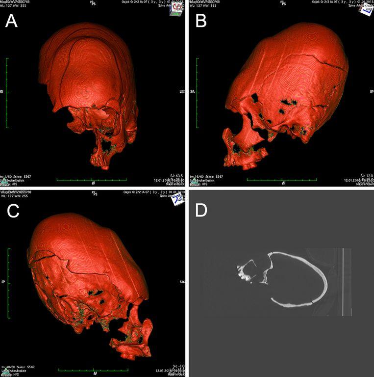 De drie schedels waren afkomstig van 'gewone' jongens die 12 tot 16 jaar oud waren toen ze stierven. De rare vorm van hun schedel is het resultaat van opzettelijke schedelvervorming.