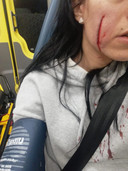 Wond op wang van 33-jarig slachtoffer van vuurwerk tijdens rellen in Tilburg.