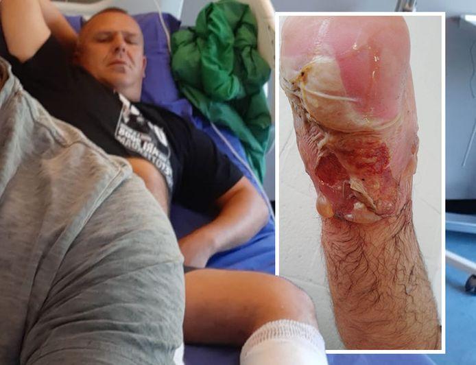 Marcin liep heftige brandwonden op tijdens zijn werk.