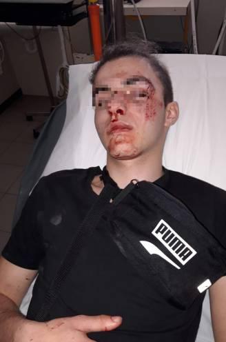 """Jarno (16) in elkaar geslagen met ketting aan Deinze-station: """"Veel passanten, maar niemand belde de politie"""""""