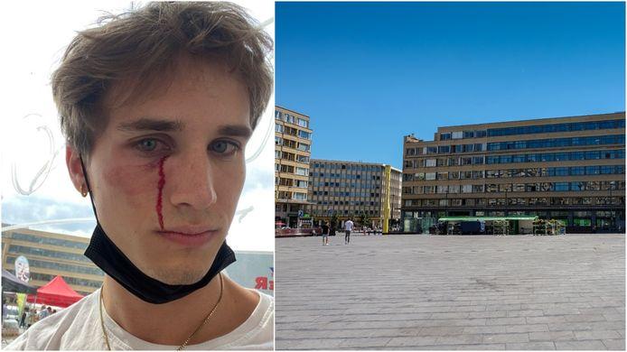 Tom Van Isacker (25) werd het slachtoffer van een homofobe aanval aan het Flageyplein in Elsene.