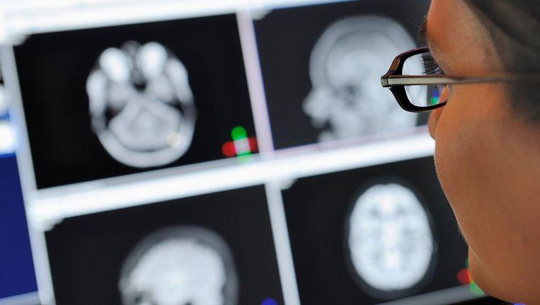 De onderzoekers hebben bij zwangere vrouwen thuis het niveau van luchtvervuiling gemeten en later bij 783 kinderen tussen de 6 en 10 jaar een hersenscan (MRI) afgenomen. Beeld anp