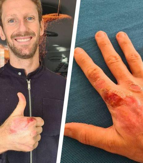 Romain Grosjean dévoile ses brûlures après son terrible crash à Bahreïn