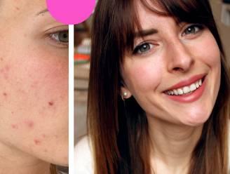 """Dermatoloog zet verschillende soorten acne op een rij. """"Na de correcte diagnose was ik op twee maanden volledig puistjesvrij"""""""