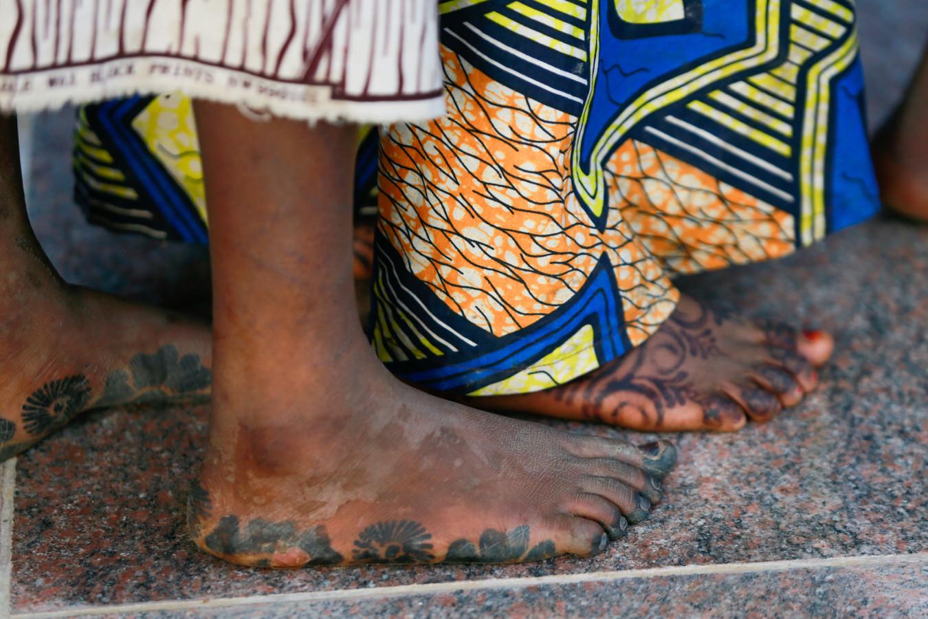 Veel meisjes hadden verwondingen aan hun voeten.