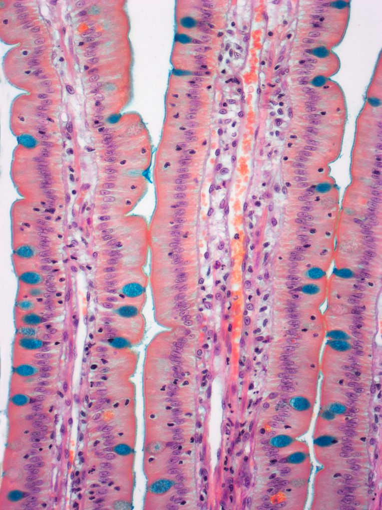 Beeld van de dunne darm door een microscoop Beeld Getty Images/Science Photo Libra