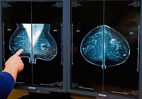 Een radioloog bekijkt digitale röntgenfoto's in de onderzoeksunit van de Stichting Bevolkingsonderzoek Borstkanker in Rotterdam.