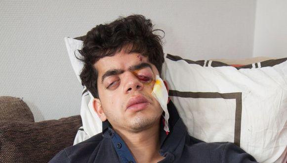 Arbi Abdellilah (25) liep een oogkasbreuk op toen hij hardhandig werd gearresteerd.