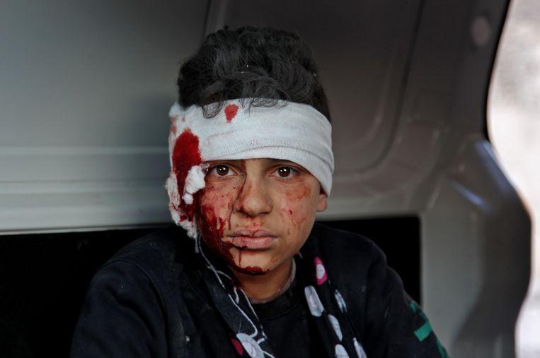 Een gewonde jongeman in het Syrische Idlib. Beeld AFP