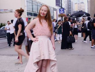 Model met downsyndroom verovert wereldwijd catwalks